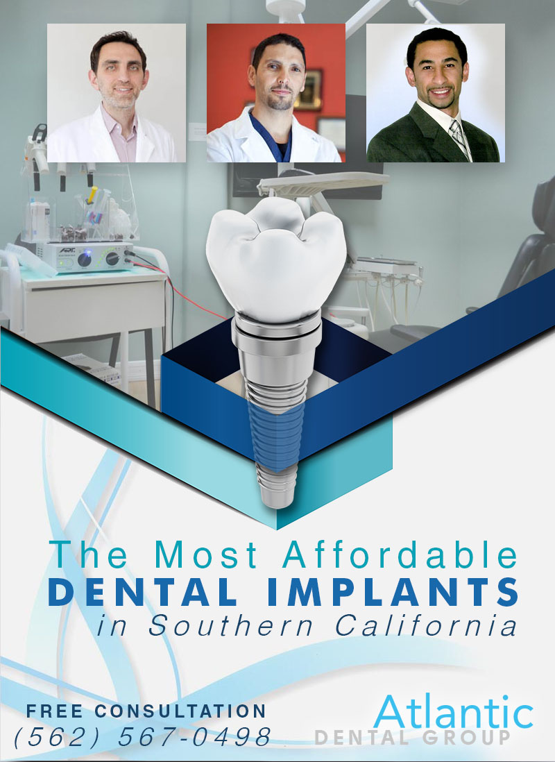 The Most Affordable Dental Implants in Southern California