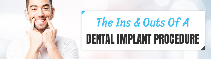 The Ins and Outs of a Dental Implant Procedure